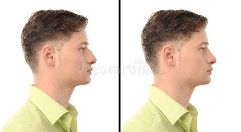 Före och efter foto av en ung man med plastikkirurgi för näsjobb. royaltyfria foton