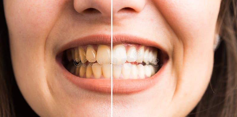 Före och efter göra vit för tänder royaltyfria foton