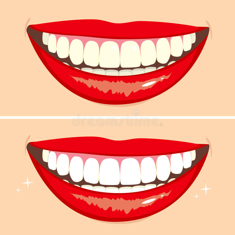 Före och efter leende royaltyfri illustrationer