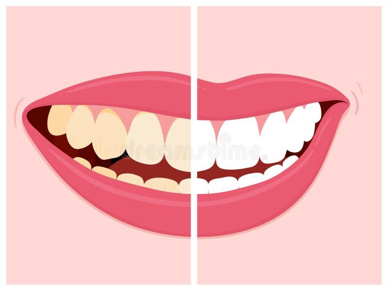 Före och efter sikt av att göra vit för tänder vektor illustrationer