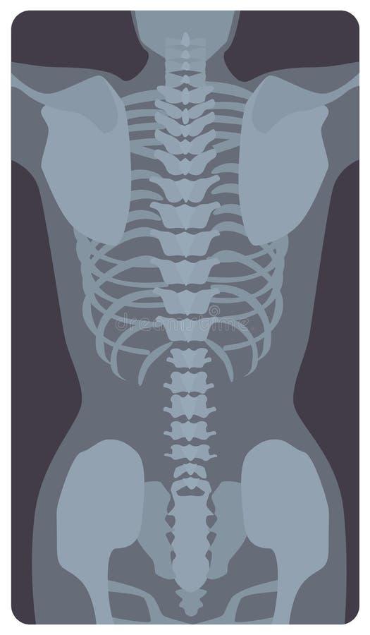 Föregående röntgenbild av den mänskliga stödburen och bäcken Röntga bilden eller den radiographic bilden av ben och skarvar, främ stock illustrationer