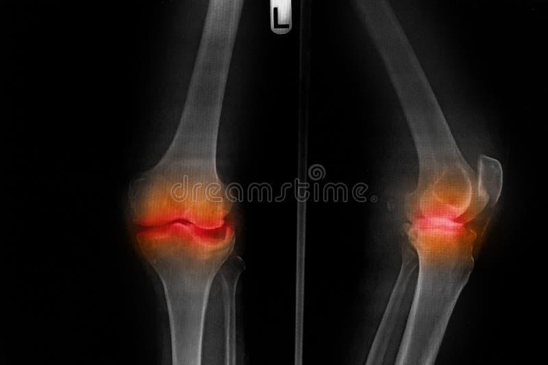 Föregående röntgenstråle AP för film för Osteoarthritisvänstersidaknä - bakdel av knäet royaltyfria bilder