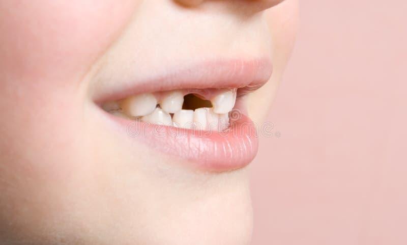 förlorad tand royaltyfri bild