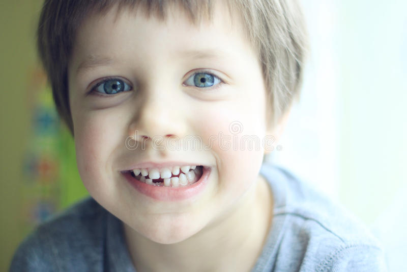 förlorad tand arkivfoto