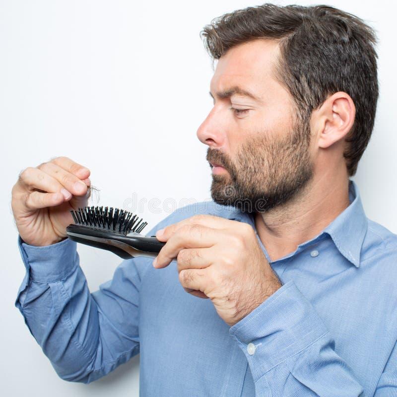 Förlorande hår för man arkivfoton