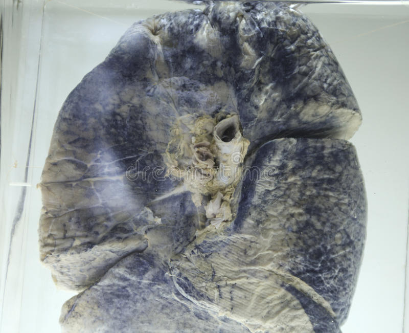 förorenad lung royaltyfri fotografi