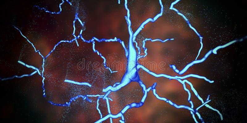 Försämring av den dopaminergic neuronen, en nyckel- etapp av utveckling av sjukdomen för Parkinson ` s royaltyfri illustrationer
