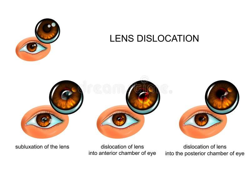 Förskjutning av linsen av ögat vektor illustrationer
