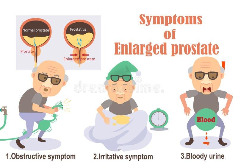 Förstorad prostata vektor illustrationer