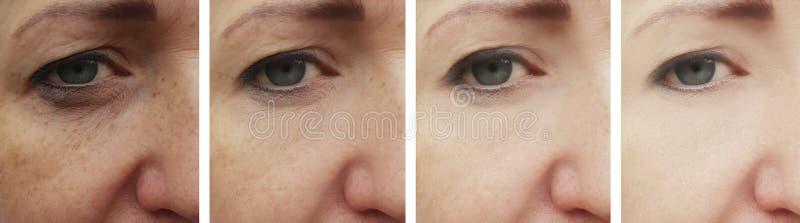 Föryngring för behandling för cosmetology för patient för korrigering för regenerering för kvinnaframsidaskrynklor före och efter arkivbilder