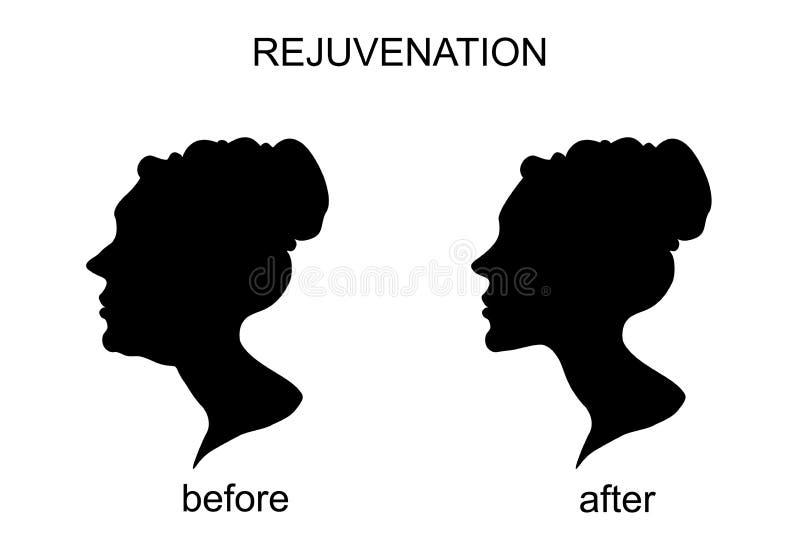 Föryngring före och efter en ansiktslyftning haka vektor illustrationer