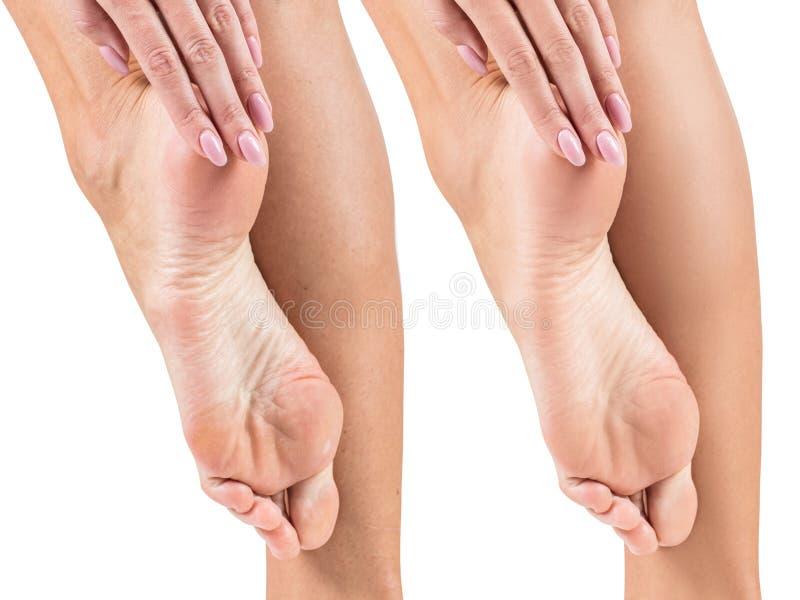 Füße mit trockener Haut vor und nach Behandlung lizenzfreies stockbild