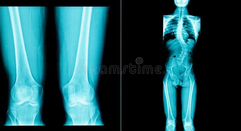 Faccia i raggi x dell'immagine dell'essere umano hanno un corpo dell'osso lungo fotografie stock libere da diritti