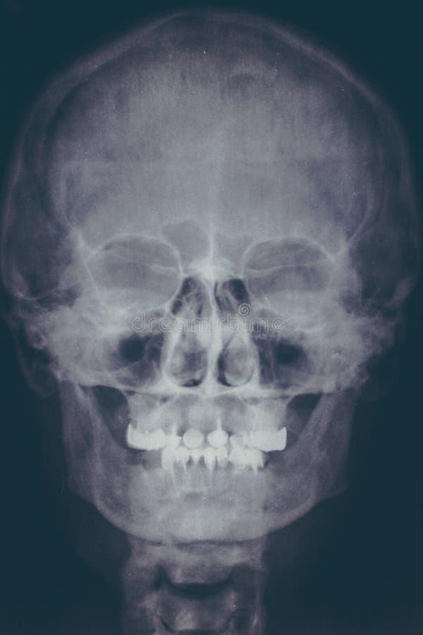 Faccia i raggi x dell'immagine o del rontgen del cranio umano, primo piano Ricerca capa dei raggi x della testa dello scheletro C immagini stock libere da diritti