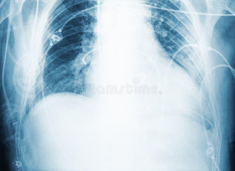 Faccia i raggi x della ricerca del petto paziente del ` s dopo chirurgia immagine stock libera da diritti
