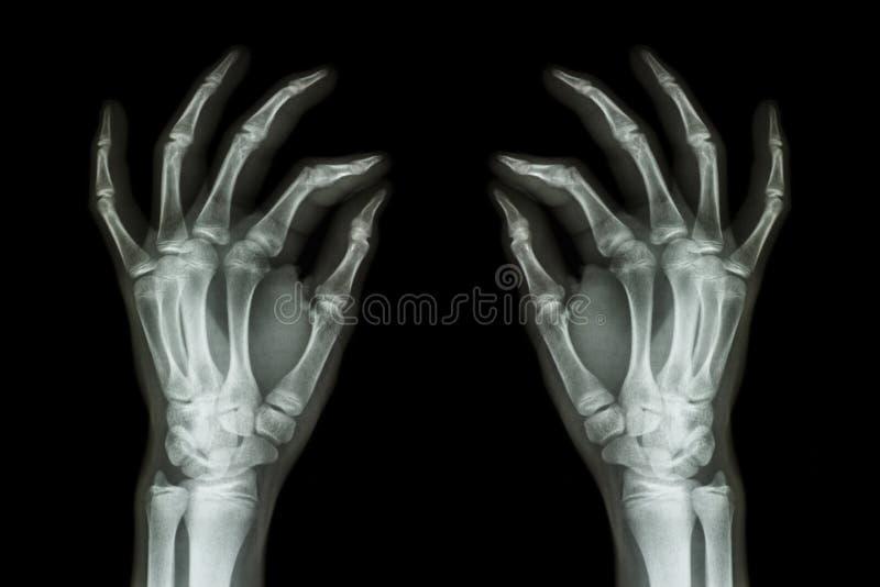 Faccia i raggi x delle mani umane normali (parte anteriore) su fondo nero fotografie stock libere da diritti