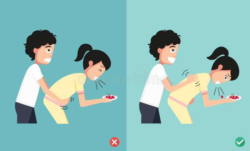 Faccia torto e radrizzi ai modi il pronto soccorso, uomo che dà la donna di soffocamento royalty illustrazione gratis