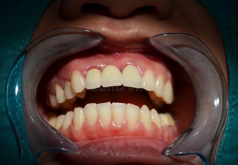 Facciata frontale dei denti superiori e più bassi fotografia stock