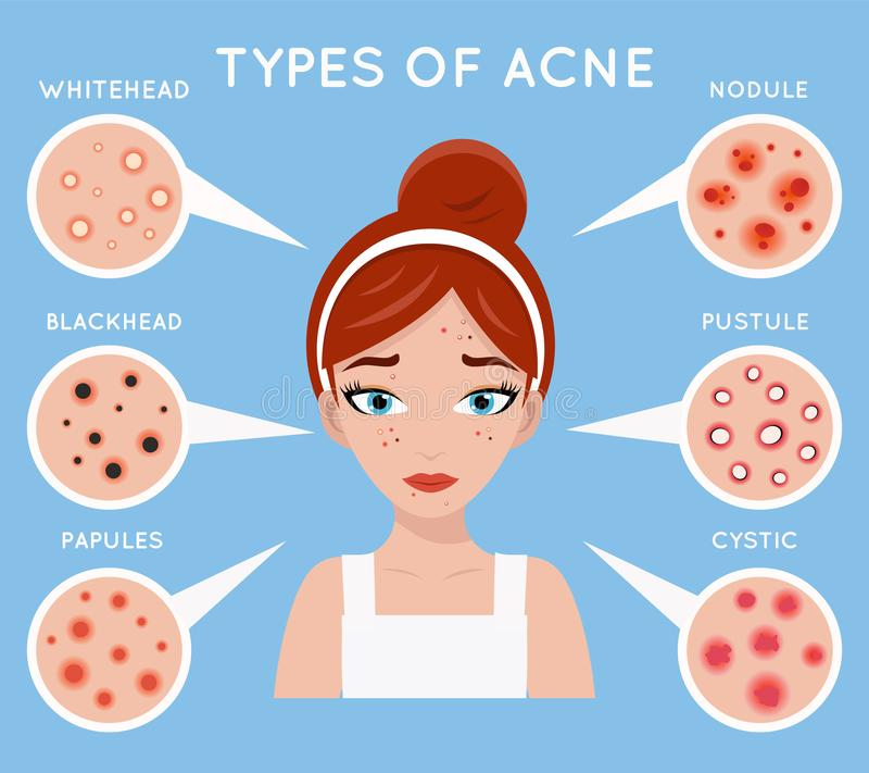 Face acne women skin cosmetic care pimple problem beauty cosmetics medicine beautiful girl head design vector stock illustration