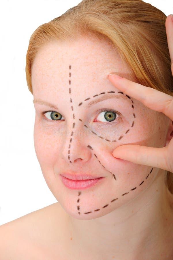 Face antes da cirurgia plástica, elevador de face fotografia de stock