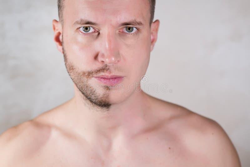 Face de homem metade da qual coberta de bolhas fotografia de stock