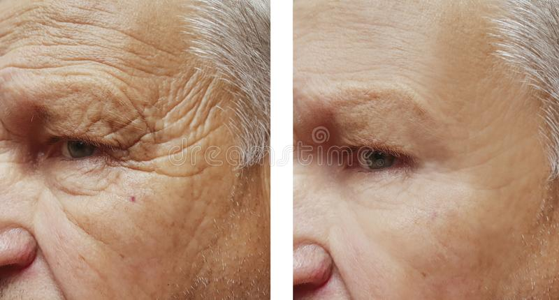 Face elderly man patient forehead wrinkles therapy face before and after procedures. Face elderly man forehead wrinkles face before and after procedures removal stock photo