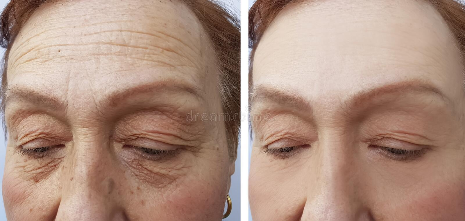 Face of an elderly surgery woman wrinkles results dermatology treatment face collagen ,before and after procedures stock image