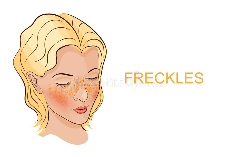 A face with freckles young women. Illustration of the face of a young woman with freckles, Brightener vector illustration