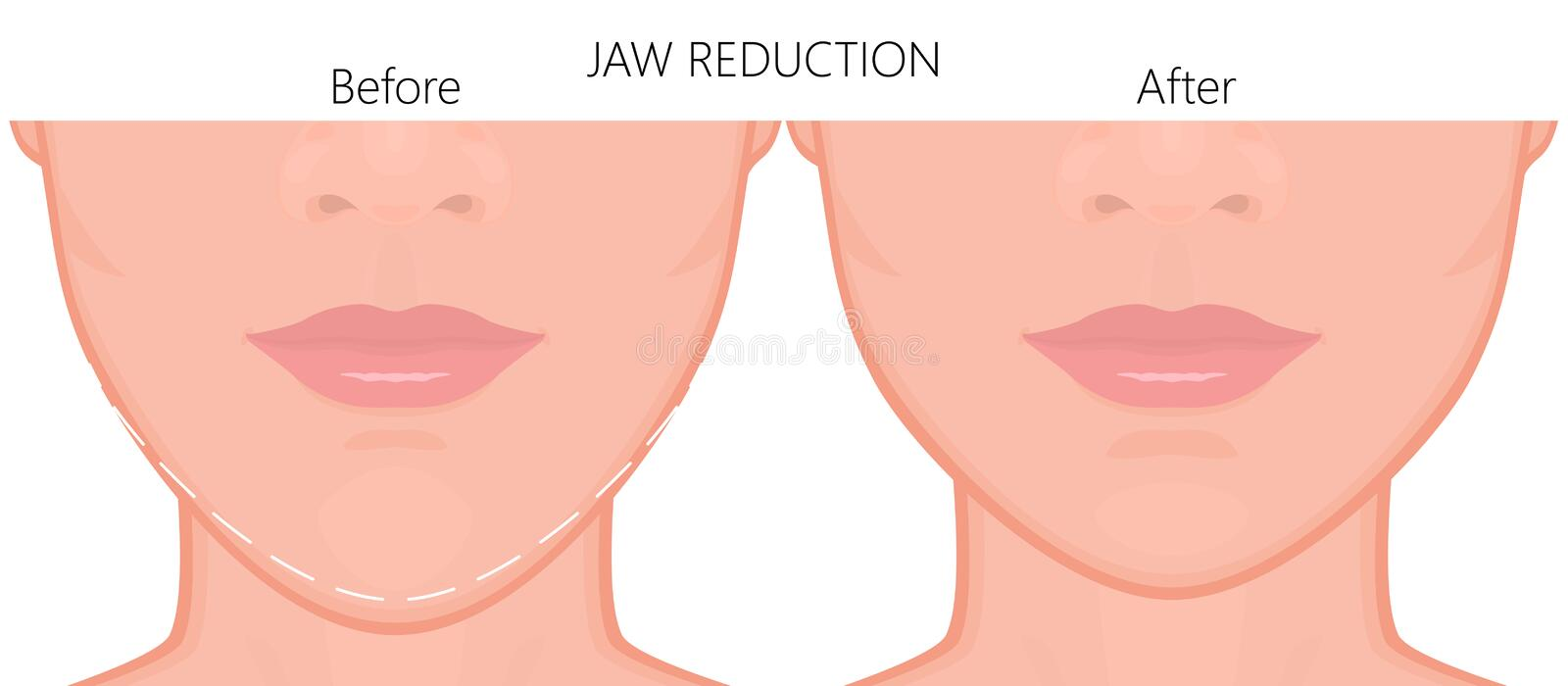 Face front_Jaw reduction surgery close up 3. Vector illustration. A young white female face before and after plastic surgery - jaw reduction. Close up view. For vector illustration