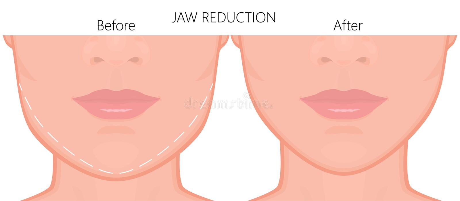 Face front_Jaw reduction surgery close up 1. Vector illustration. A young white female face before and after plastic surgery - jaw reduction. Close up view. For stock illustration