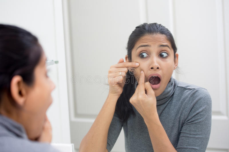 Face imperfections royalty free stock photography