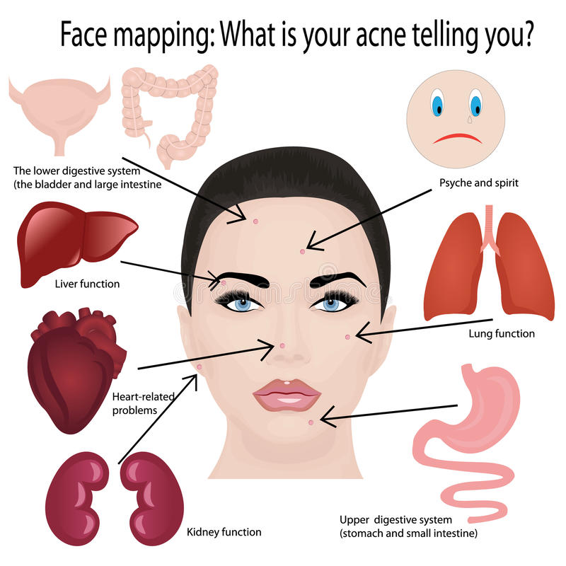 Face mapping. What your acne telling you info-graphic stock illustration