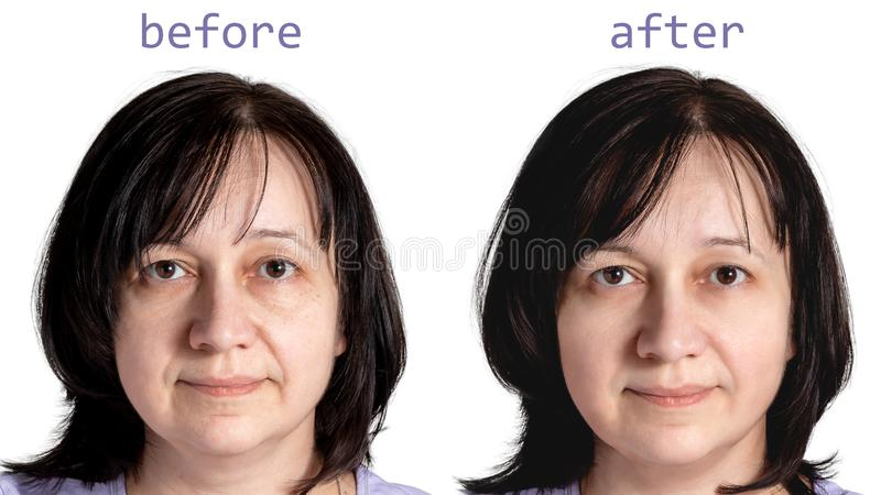 Face of a mature woman with dark hair before and after cosmetic rejuvenating procedures, isolated on white background stock photos