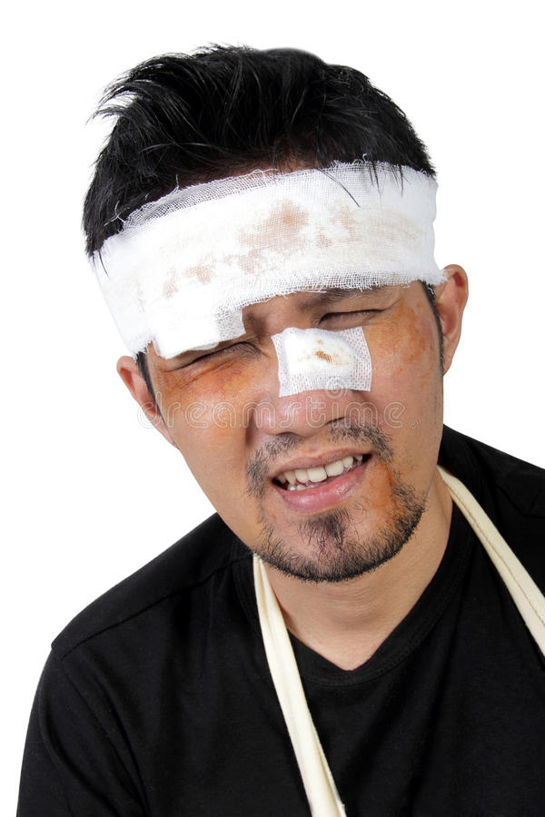 Free Face Of Beaten Man Feels Hurt Royalty Free Stock Photo - 99055955