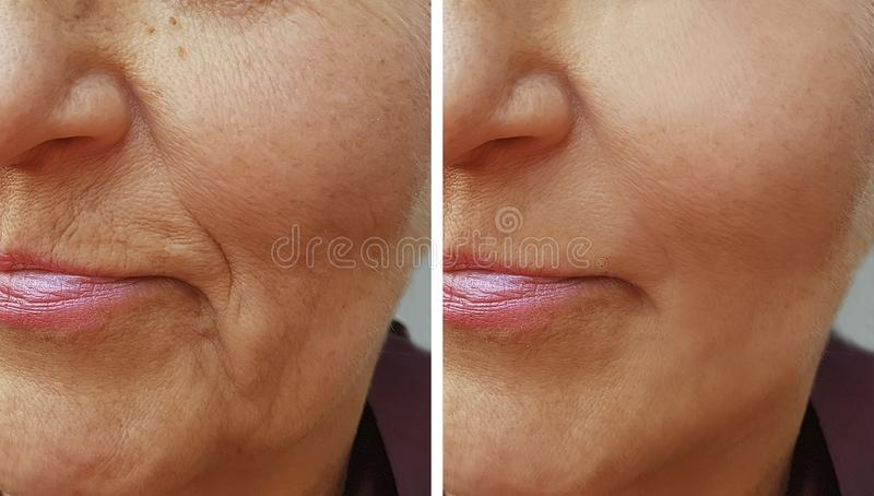 Face of an old wrinkle woman before and after stock image