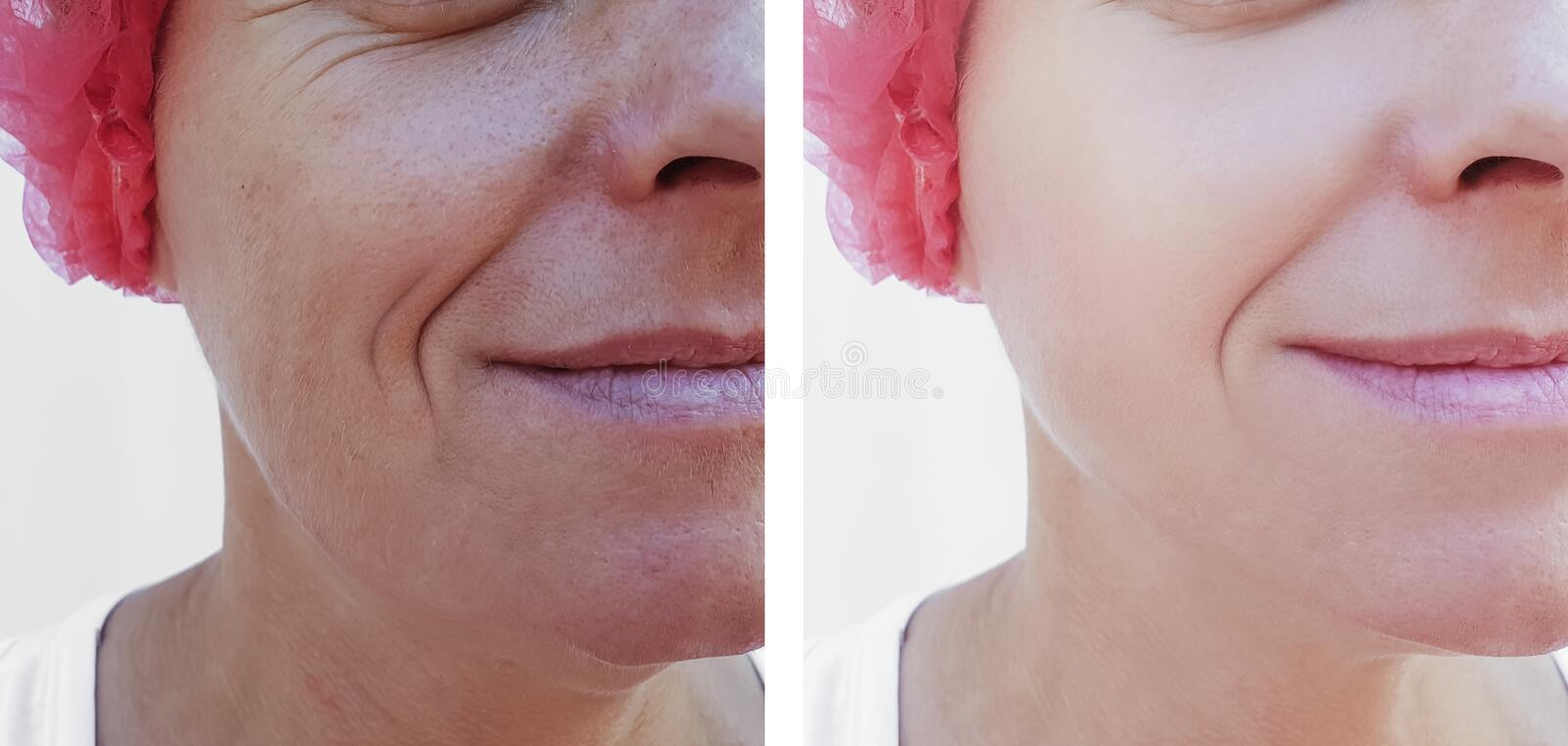 Face of an older woman lifting difference therapy regeneration before and after treatments. Face an older woman before and after treatments lifting retouch stock photos