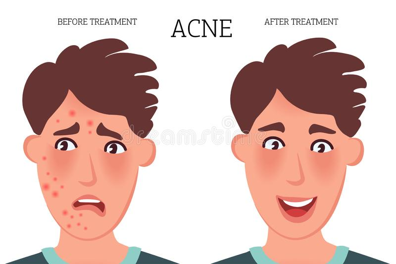 Teenager with acne and acne on the face before and after treatment. Fungal skin lesions. Dermatological diseases vector graphics. The face of a person with acne vector illustration