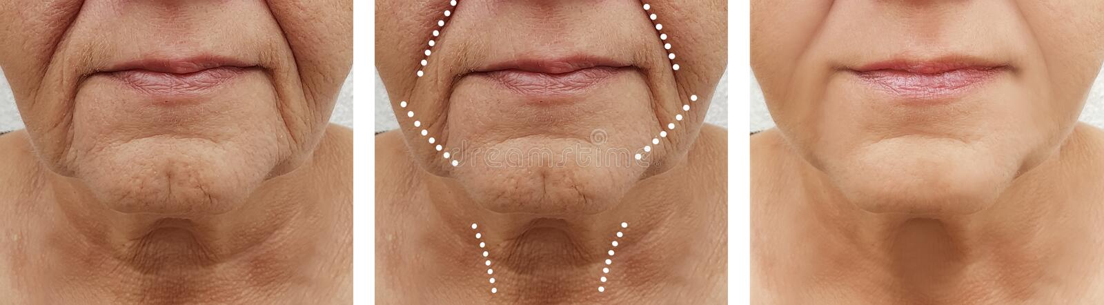 Face senior of older woman injection difference rejuvenation before and after treatments. Face senior of an old woman wrinkles removal before after therapy royalty free stock photography