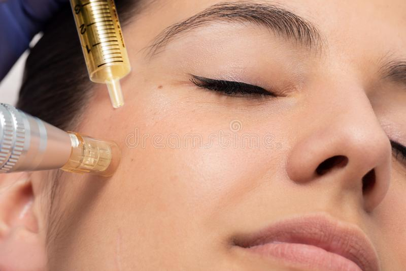 Face shot of woman at micro needle cosmetic treatment session royalty free stock images