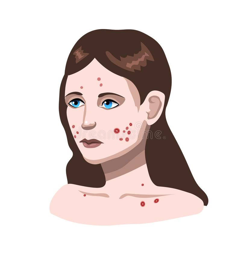 Face with skin problems. Girl with acne royalty free illustration