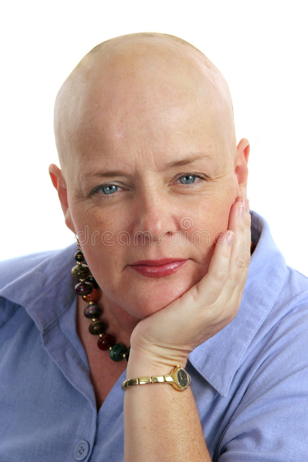 Face of Survival. A cancer survivor, bald from chemotherapy, showing courage and grace