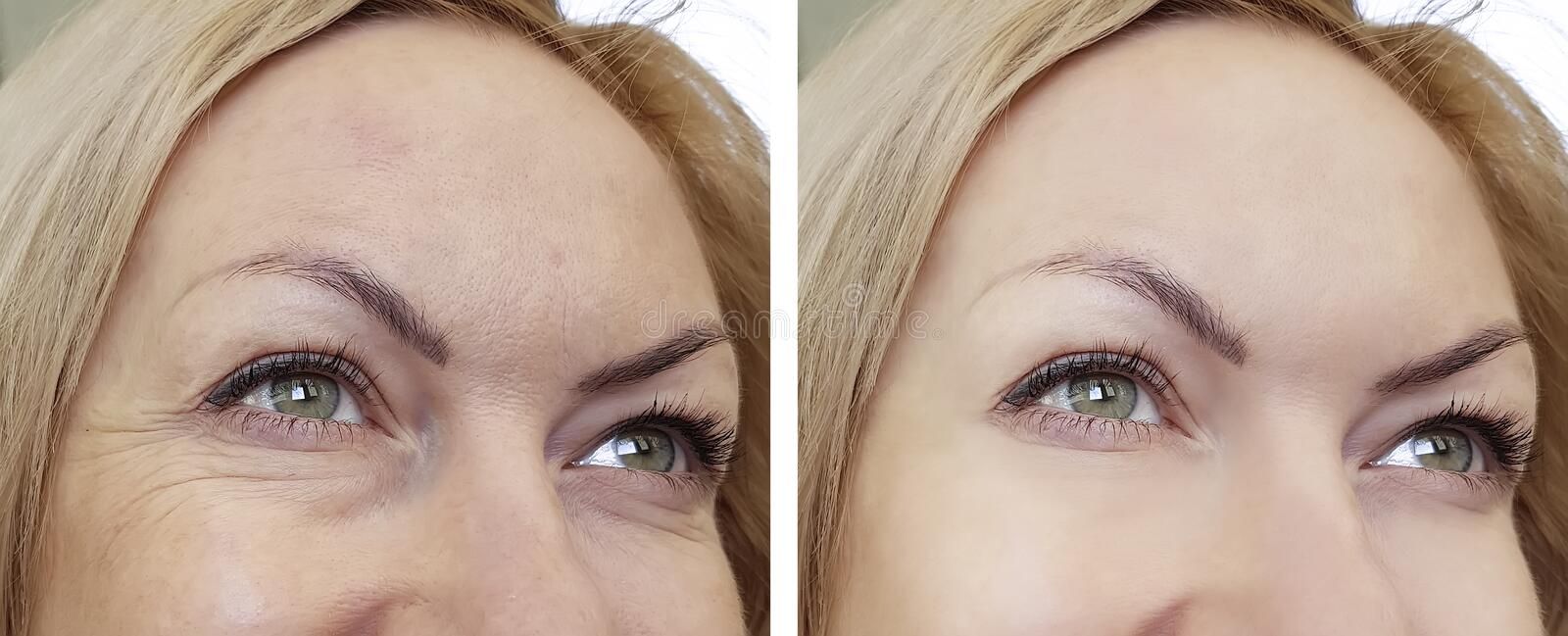 Face woman wrinkles before and after stock photography