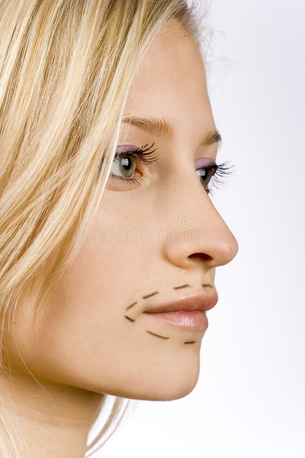 Face of young woman prepared to plastic surgery royalty free stock image