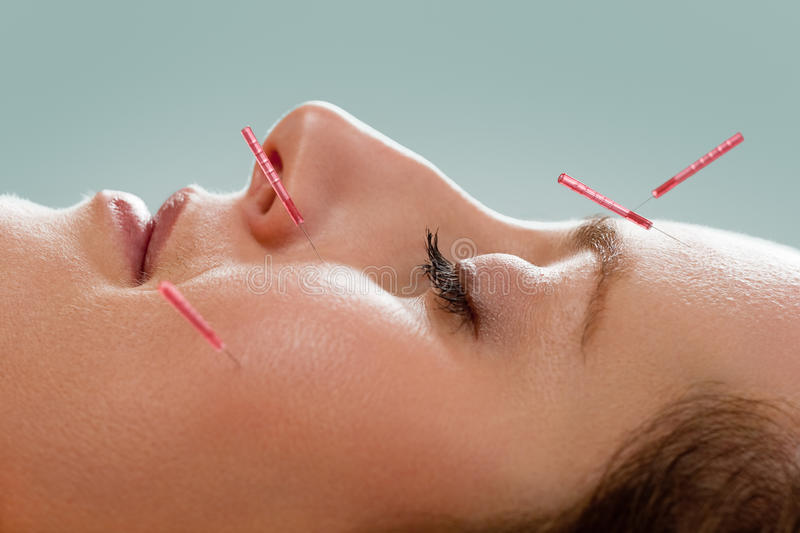Facial acupuncture royalty free stock images