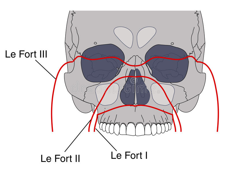 Facial fractures. Drawing of facial fractures showing the Le Fort classification vector illustration
