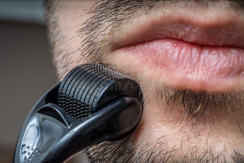 Facial hair care concept. Young man is using derma roller  on beard. royalty free stock photos