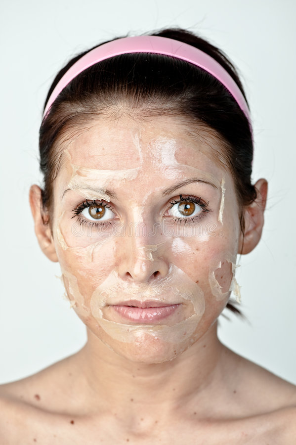 Facial Peel. Closeup of a woman with the remnants of a facial skin peel on her face. Isolated on a white background stock photo