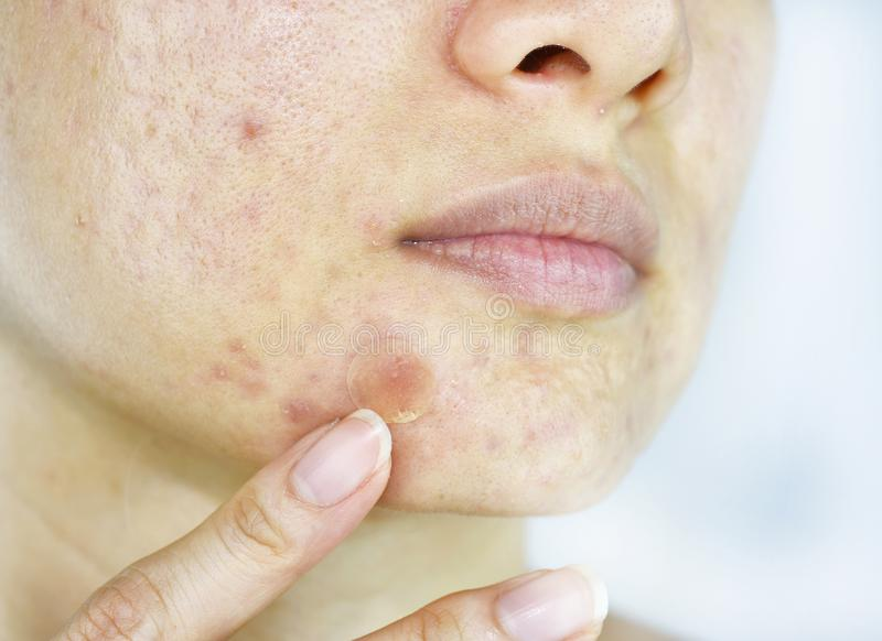 Facial skin problem, Close up woman face with whitehead pimples and acne patch royalty free stock photo