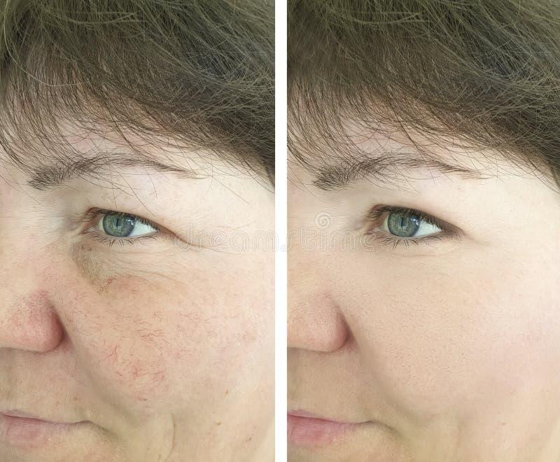 Faites face au couperose des rides patientes vieillissantes pluses âgé d'un traitement avant et après des procédures photos stock