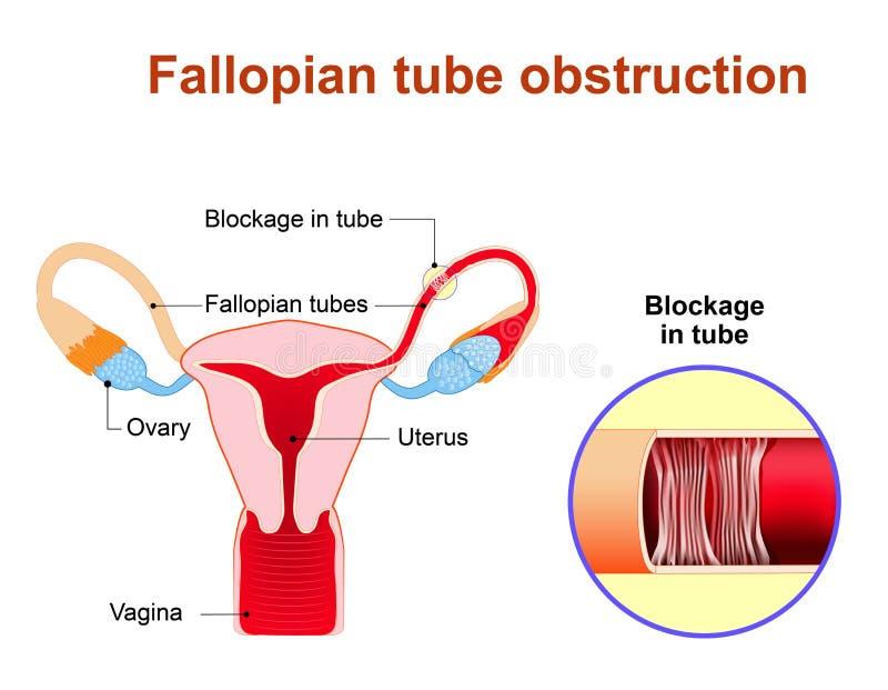 Fallopian Tube Obstruction Stock Vector Illustration Of Block